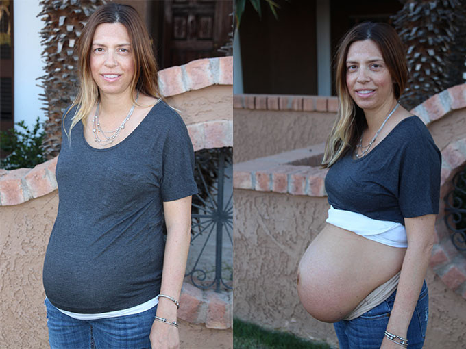 After Baby Body